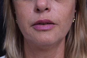 עיצוב שפתיים - אחרי